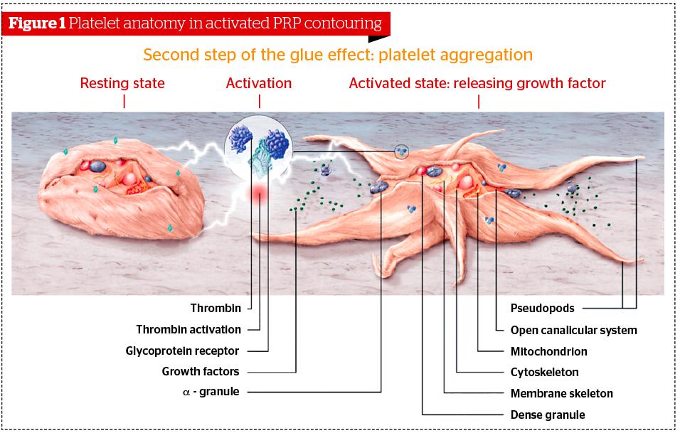 platelet rich plasma treatment