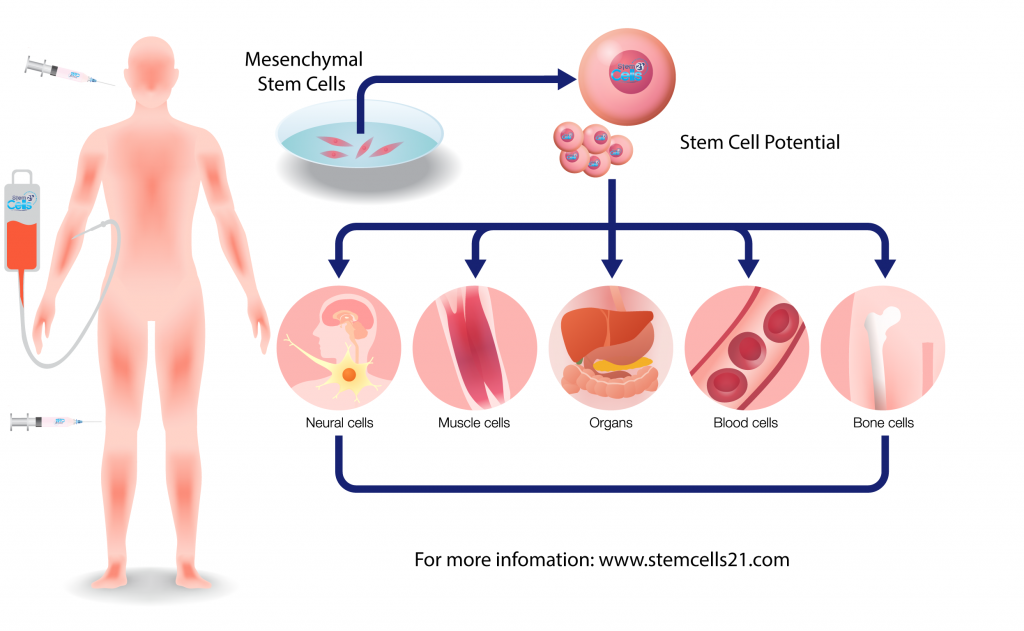 Stem Cell Info Pic Adult Stem Cell Therapy Abroad Stem
