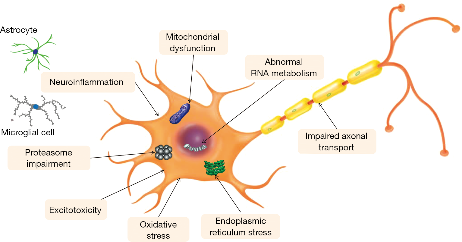 ALS Stem Cell Treatment Therapy (Amyotrophic Lateral Sclerosis)