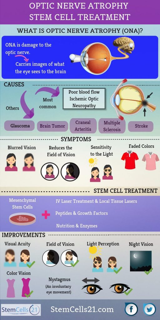 Optic Nerve Atrophy Stem Cell Therapy Infographic