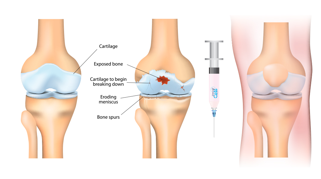 osteoarthritis stem cell treatment