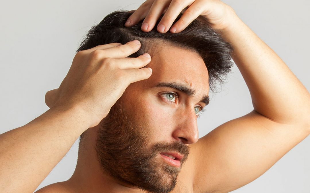 Baldness Stem Cell Therapy