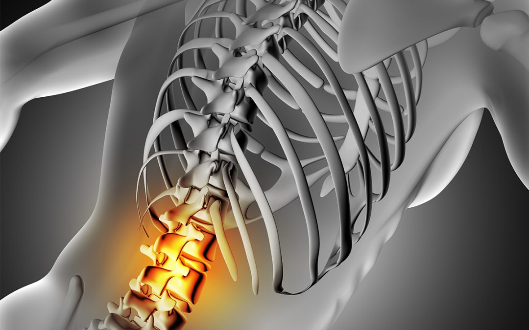 Spine Inflammation – Why Motor Neurons Perish in ALS