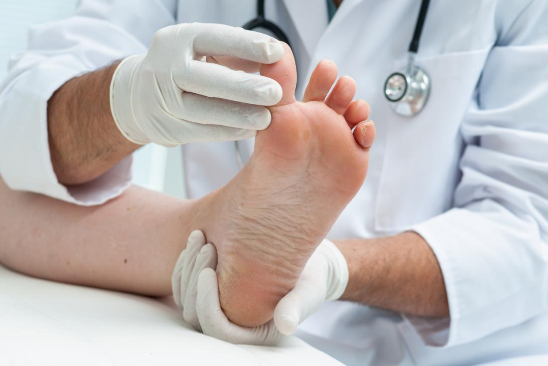 Morton's Neuroma, Vancouver Orthotics