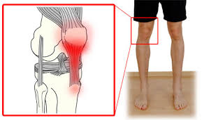Patella Tendonitis, Vancouver Orthotics