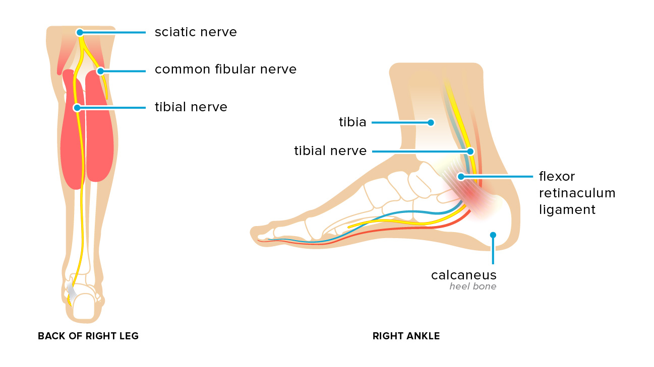 Tarsal Tunnel Syndrome, Vancouver Orthotics