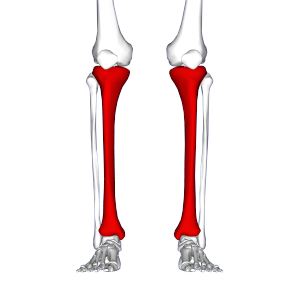 Shin Splints, Medial Tibial Stress Syndrome.png
