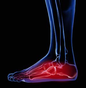 Foot Pain.png