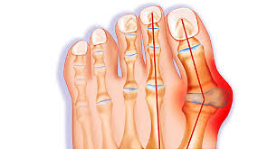 Bunions Surgery, Vancouver Orthotics