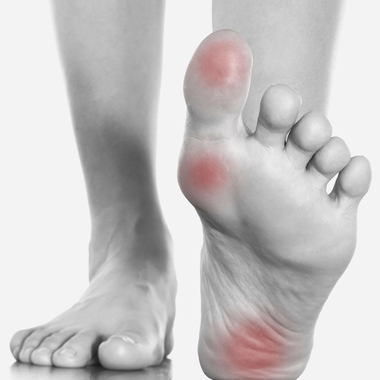 Arthritis_FootPain.jpg
