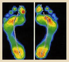 custom insoles, 3D Foot Scan, Electronic Gait Scan Analysis, Vancouver Orthotics