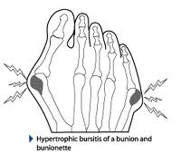 Treatment for a Bunion on Outside of Foot