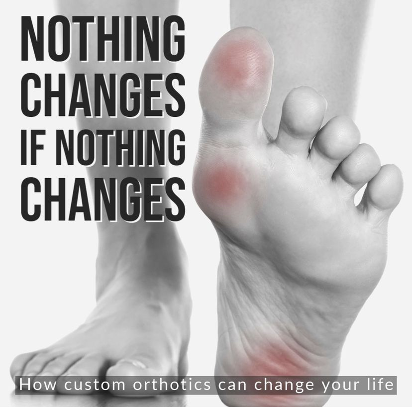 Surrey Orthotics for Plantar Fasciitis