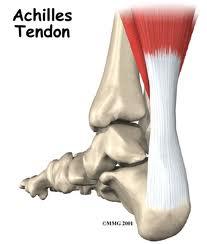 Achilles Tendonitis, Vancouver Orthotics