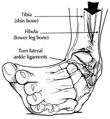 ankle sprains, Treatment, Vancouver Orthotics