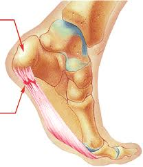 plantar fasciitis treatment vancouver, Vancouver Orthotics