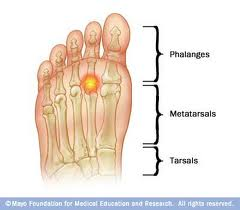Dropped Metatarsal Heads, Vancouver Orthotics