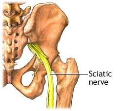 Sciatic Nerve, Sciatica, Leg Pain Vancouver Treatment 1