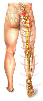 Sciatic Nerve, Sciatica, Leg Pain Vancouver Treatment 2
