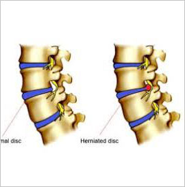 Herniated Disc, , Vancouver Chiropactic, 604-733-7744.jpg