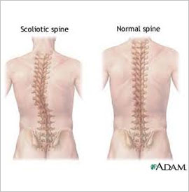 Scoliosis, , Vancouver Chiropactic, 604-733-7744.jpg