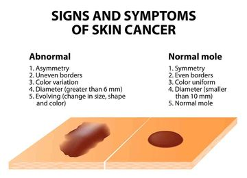 Wall_melanoma_skin_cancer_symptoms