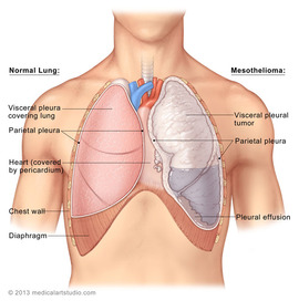 Preview_pleural_mesothelioma