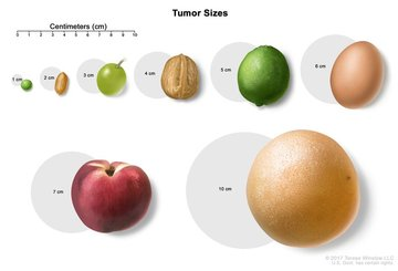 Wall_tumor_size_equivalents