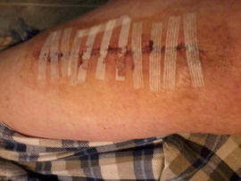 Preview_left_arm_after_surgery
