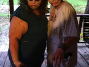 twin zombies