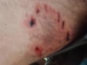 coyote bite yesterday