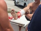 Shark Attacks Surfer Saturday at Fort Pierce Inlet