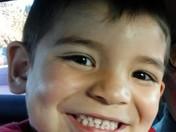 Santos Baca beautiful smile 4yrs