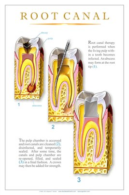 """ROOT CANAL"" #2 - (white) Dental Wall Chart DWC704"
