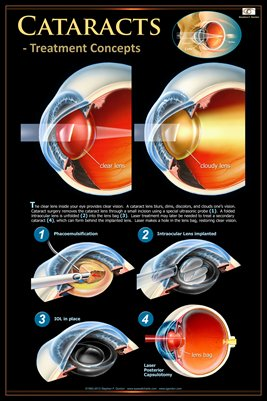 CATARACTS -TREATMENT CONCEPTS Eye Wall Chart #402