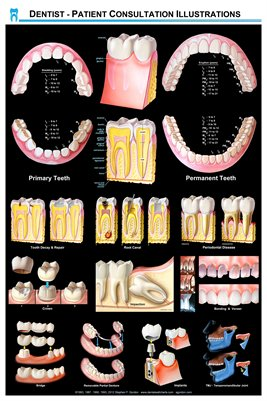 Dentist - Patient Consultation Illustrations Wall Chart -(black)DWC01