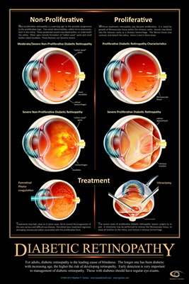 DIABETIC RETINOPATHY Eye Wall Chart #515A