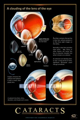 CATARACT CONCEPTS Eye Wall Chart #403A