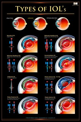 TYPES OF IOL's Eye Wall Chart #406