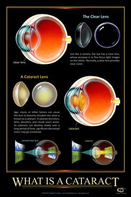 WHAT IS A CATARACT? Eye Wall Chart #409A