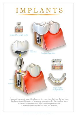 """IMPLANTS"" - (white) Dental Wall Chart DWC122"