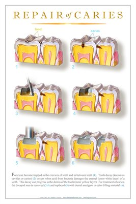 """REPAIR OF CARIES"" #3 - (white) Dental Wall Chart DWC506"