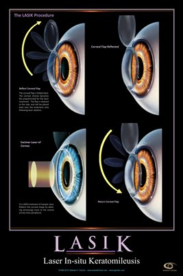 LASIK PROCEDURE Eye Wall Chart #604B