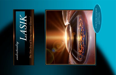 Understanding Lasik - Large Visual Display
