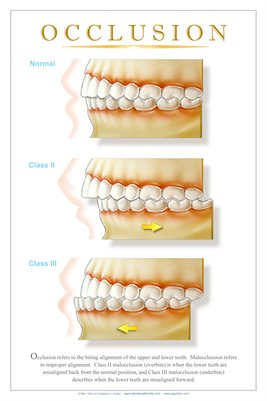 """OCCLUSION"" - (white) Dental Wall Chart DWC242"