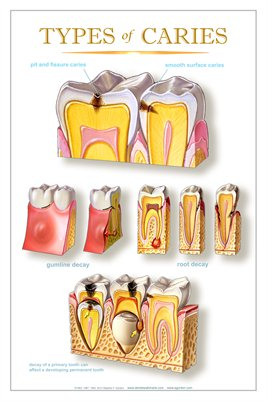 """TYPES of CARIES"" - (white) Dental Wall Chart DWC402"