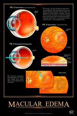 MACULAR EDEMA Eye Wall Chart #517A