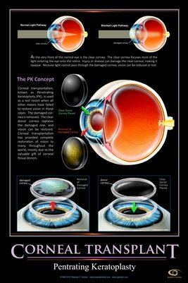 CORNEAL TRANSPLANT CONCEPT Eye Wall Chart v.2 #608A