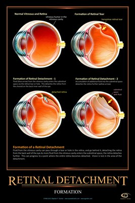 RETINAL DETACHMENT Eye Wall Chart #504A