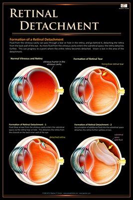 RETINAL DETACHMENT Eye Wall Chart #504